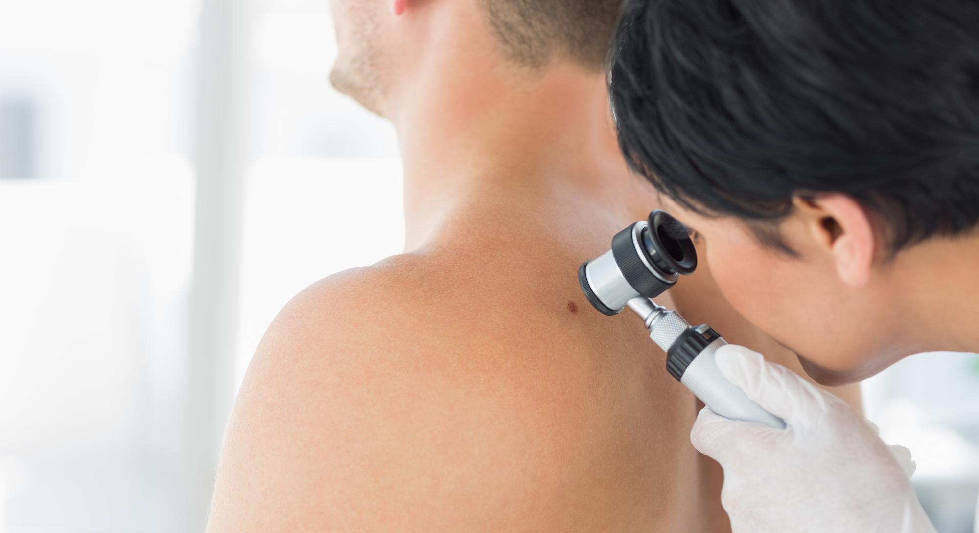 É só uma pinta ou é um melanoma? Artigo Dra. Lílian Licarião publicado no British Journal of Dermatology